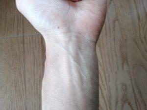 左手首内側